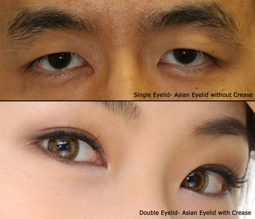 Asian Eyelid Single and Double comparison