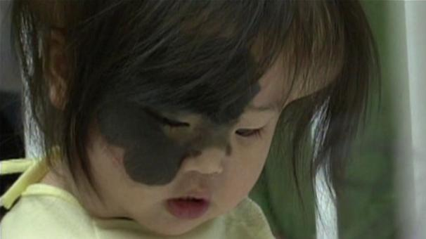 New face for chinese orphan
