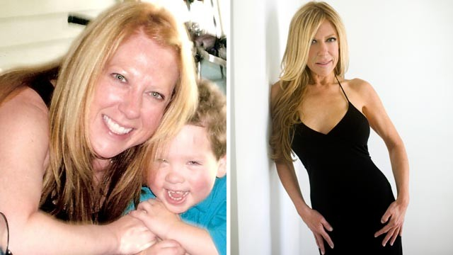 Abc_alicia_hunter_before_after_surgery_jef_110511_wg